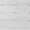 Тахикардия (сердцебиение)