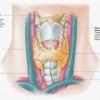 Уплотнение в правой части щитовидной железы