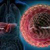 Вирусный гепатит: симптомы и лечение