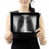 Воспаление легких: симптомы без температуры