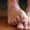 Все о грибке стоп и ногтей и его лечении