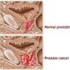 Все о раке предстательной железы (простаты) и его лечении