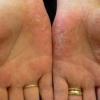 Заболевание кожи рук и ног