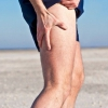 Защемление седалищного нерва: симптомы и лечение