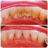Зубной камень удаление в домашних условиях